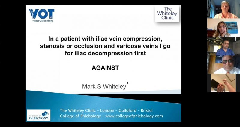 Online debate about varicose veins treatments during the Covid Crisis Mark Whiteley presenting his views about varicose veins with iliac veins compression