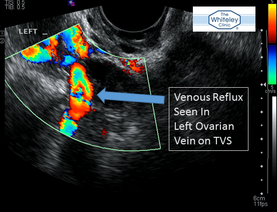 Ovarian vein reflux seen on Transvaginal Duplex Scanning - the best test for Pelvic Varicose Veins and part of The Whiteley Protocol for pelvic varicose veins