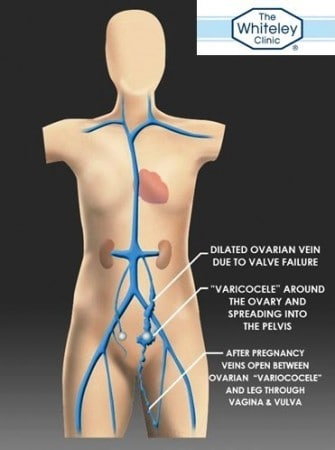 "Ovarian vein reflux - a cause of pelvic varicose veins or ""pelvic congestion"" - best test is Transvaginal Duplex Ultrasound (TVS)"