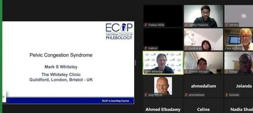 PCS Pelvic Congestion Syndrome teaching at The European College of Phlebology by Prof Mark Whiteley 1st Sep 2021