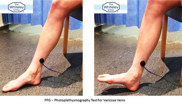 Photoplethysmography (PPG) technique - how PPG is performed to show venous reflux and varicose veins