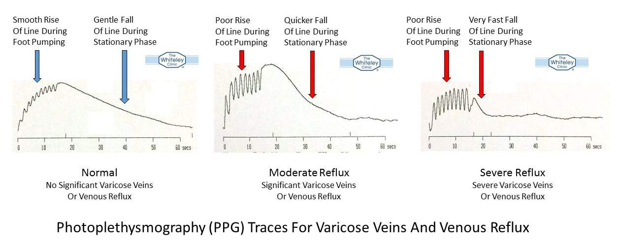 Photoplethysmography (PPG) traces - How PPG shows normal veins from varicose veins and severe venous reflux