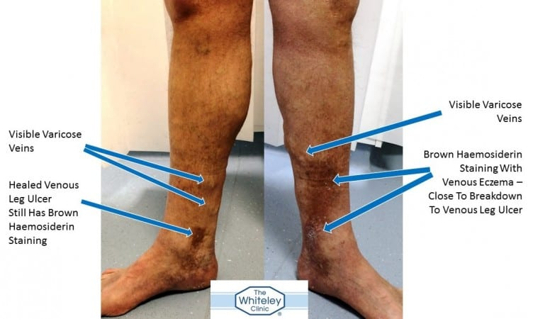 Patient with Healed Leg Ulcer Right and Venous Eczema Left - Curable By The Whiteley Protocol® - The Whiteley Clinic