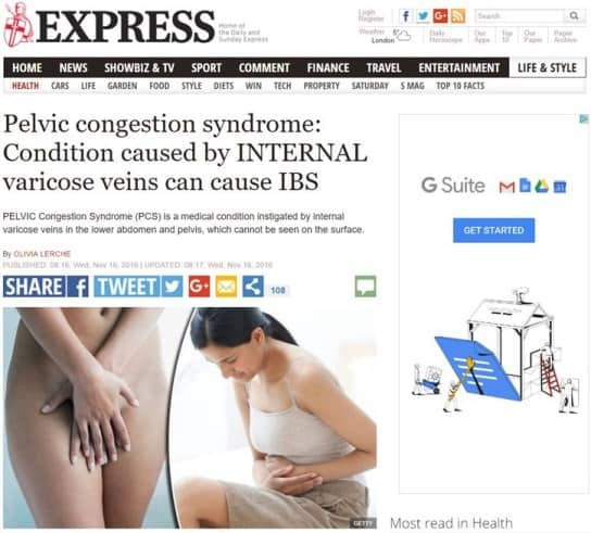 Pelvic Congestion Syndrome Dr David Beckett of The Whiteley Clinic in the Express