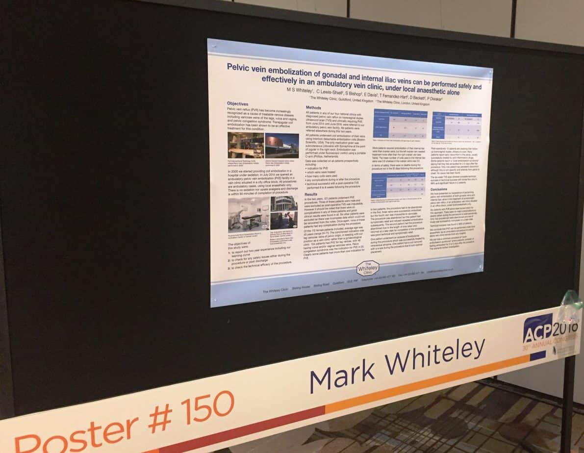 Poster on treating pelvic varicose veins under local anaesthetic as a walk-in, walk-out procedure at The Whiteley Clinic