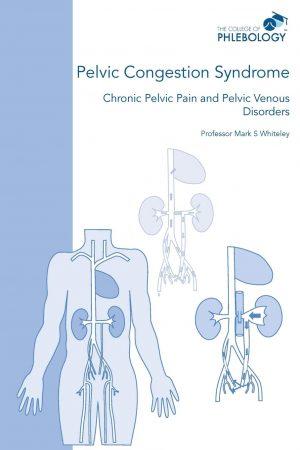 Pelvic congestion syndrome – chronic pelvic pain and pelvic venous disorders ISBN 978-1908586070
