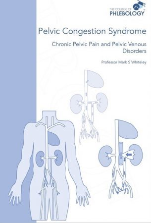Pelvic congestion syndrome -chronic pelvic pain and pelvic venous disorders ISBN 9781908586070