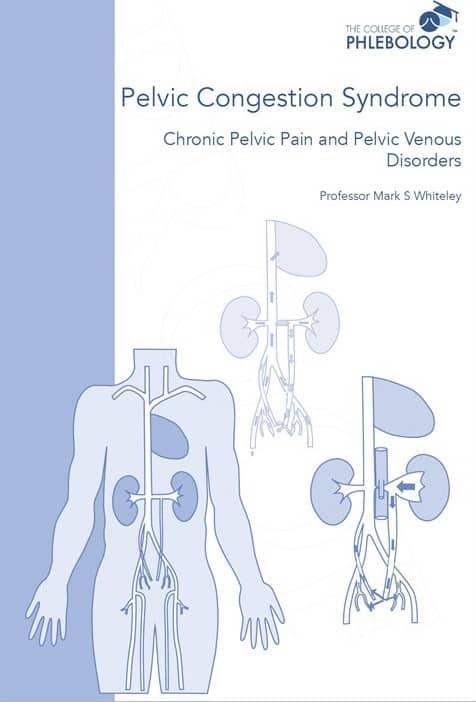 Pelvic congestion syndrome -chronic pelvic pain and pelvic venous disorders ISBN 9781908586070