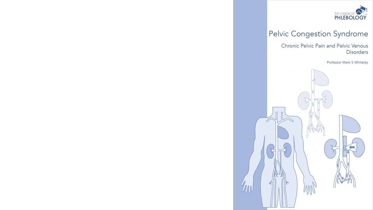 Pelvic congestion syndrome – Book coming soon