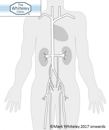 Pelvic veins - the cause of pelvic congestion syndrome