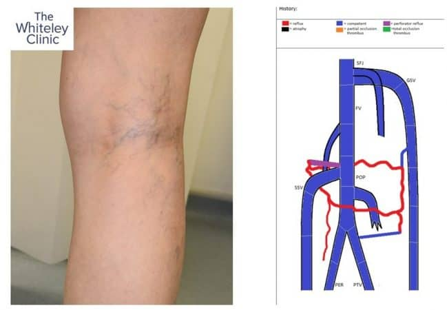 Perforating vein at back of knee causing spider veins and thread veins – duplex needed to identify problem