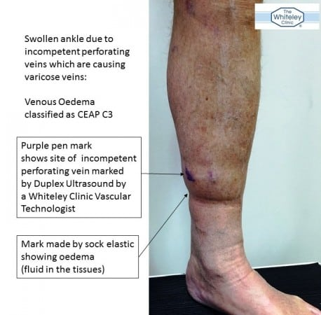 Swollen ankle due to recurrent varicose veins caused by incompetent perforating veins