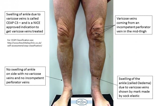 Swollen ankle on left leg due to recurrent varicose veins which are caused by incompetent perforating veins only