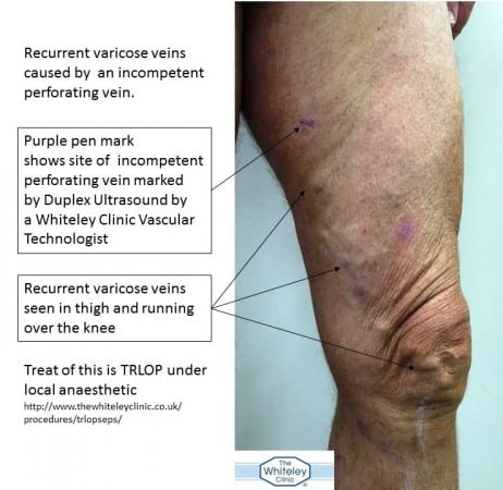 Incompetent perforator vein causing recurrent varicose veins in the thigh