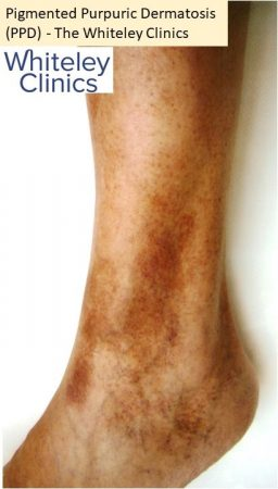 Pigmented purpuric dermatosis PPD pigmented dermatosis left ankle lateral - The Whiteley Clinic
