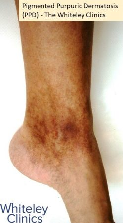 Pigmented purpuric dermatosis PPD pigmented dermatosis left ankle medial - The Whiteley Clinics