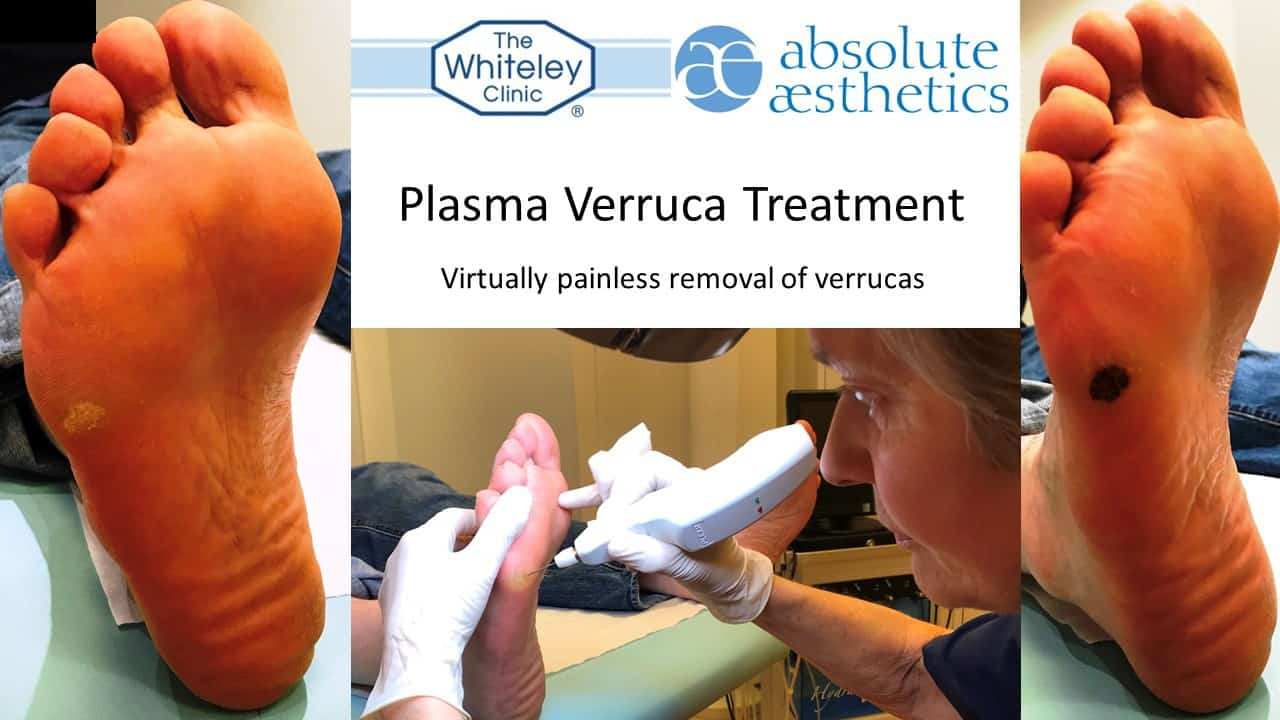 Plasma verruca treatment - virtually painless removal of even resistant verrucas using latest plasma technology at The Whiteley Clinic