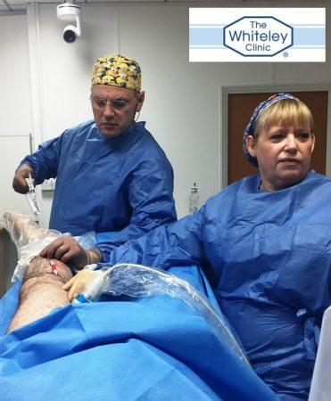 Prof Mark Whiteley and Judy Holdstock performing Clarivein for varicose veins at The Whiteley Clinic - filming a back-up for the College of Phlebology 1st International Veins Meeting 15-18 March 2017