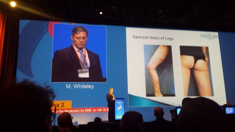 Prof Mark Whiteley lecturing about the link between Pelvic Congestion Syndrome and varicose veins of legs vulva and vagina at LINC in Leipzig 2016