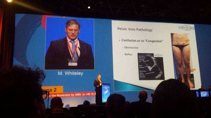Prof Mark Whiteley lecturing about the treatment of Pelvic Congestion Syndrome at LINC in Leipzig 2016