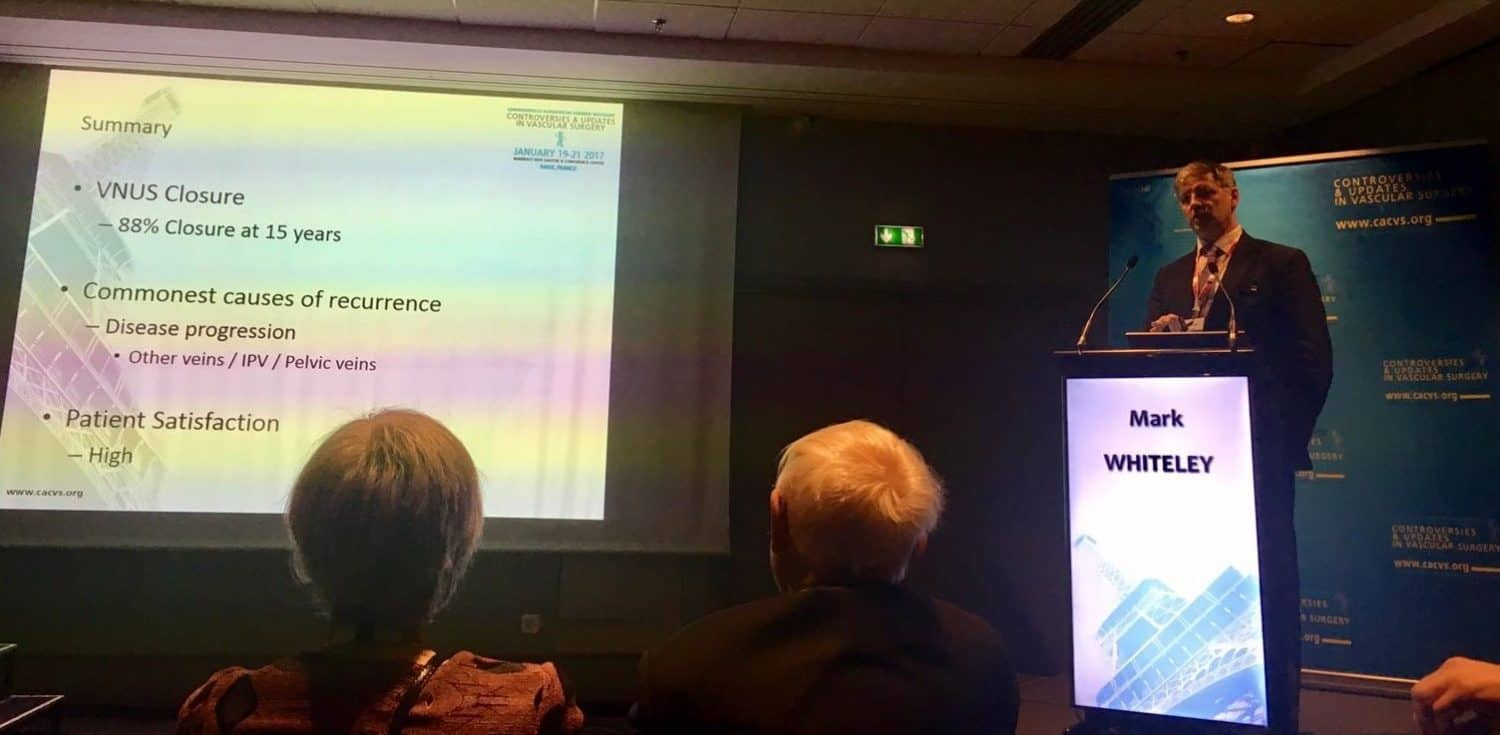 Prof Mark Whiteley lecturing in Paris at CACVS presenting his 15 years results for varicose veins endovenous treatment Jan 2017