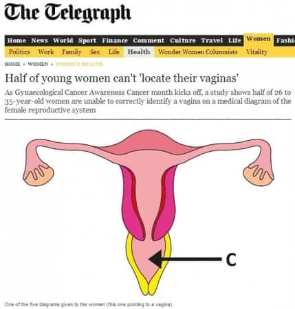 Prof Mark S Whiteley quoted in The Telegraph about varicose veins of vagina and vulva.