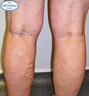 Recurrent varicose veins - CEAP-C2