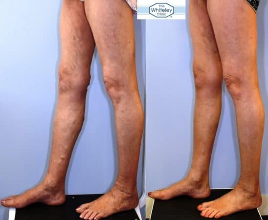 Recurrent varicose veins both after stripping 10 years ago - treated successfully by The Whiteley Protocol - Left