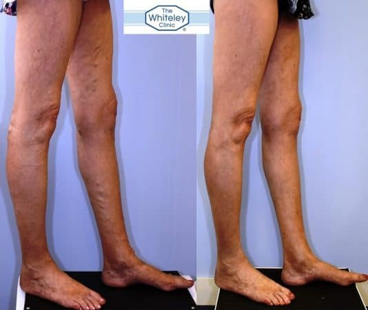 Recurrent varicose veins both after stripping 10 years ago - treated successfully by The Whiteley Protocol - Right