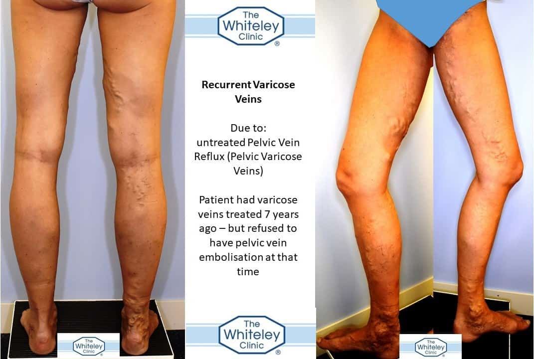 Recurrent varicose veins of legs due to pelvic veins not being treated due to patient choice