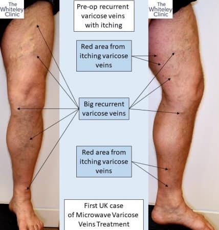 Recurrent varicose veins – pre-op photos before endovenous microwave treatment – First case in UK – Richard Sutton on 15th February 2019 at The Whiteley Clinic