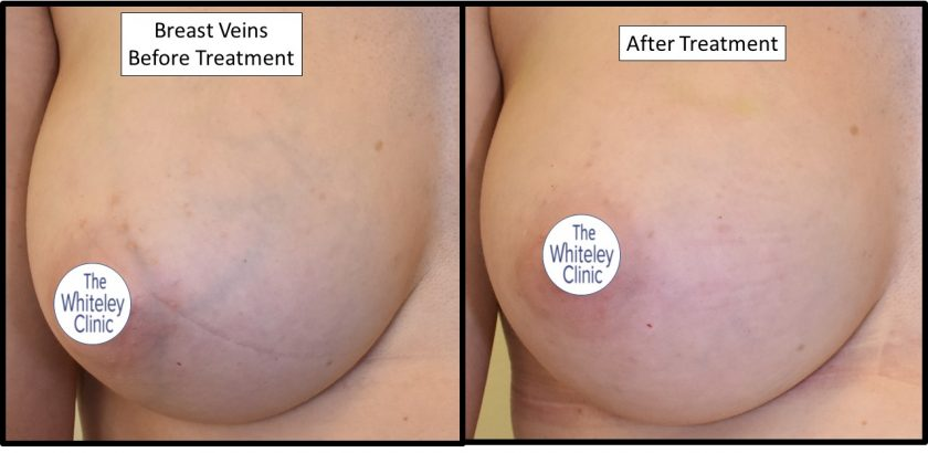 Removal of breast veins before and after at The Whiteley Clinic – Pioneering Vein Treatments