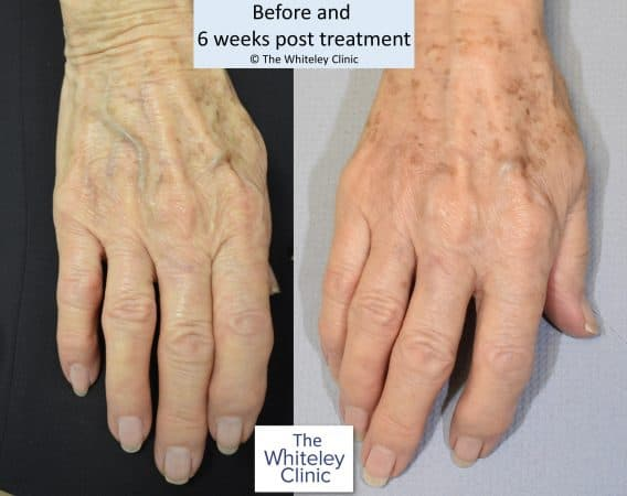 Right hand vein removal at The Whiteley Clinic – Before and After – Mark Whiteley
