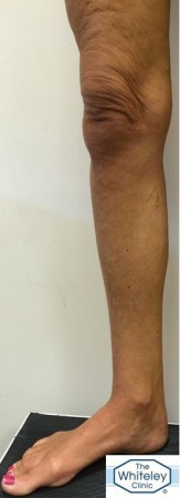Right leg showing small varicose veins only despite Great Saphenous Vein reflux