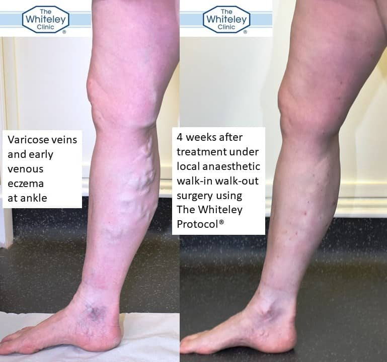 Right leg varicose veins with venous eczema before and after walk-in walk-out local anaesthetic treatment with The Whiteley Protocol