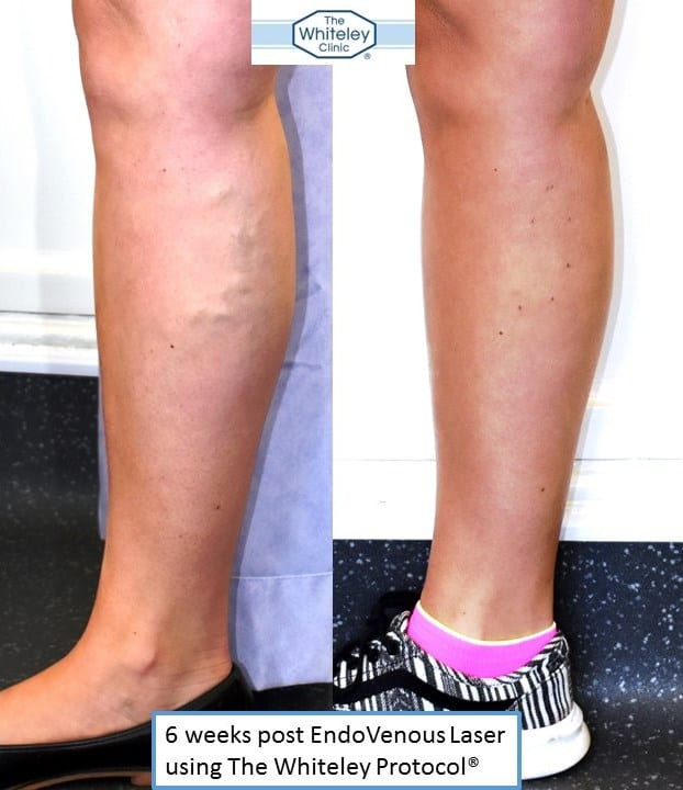 Right calf varicose veins treated using endovenous laser ablation and The Whiteley Protocol - 6 weeks after local anaesthetic vein surgery