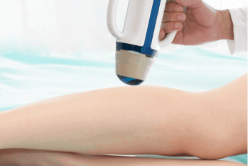 SONOVEIN – The latest non-invasive treatment option for Varicose Veins offered exclusively at The Whiteley Clinic