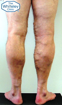 Severe Varicose Veins in Male - CEAP-C2