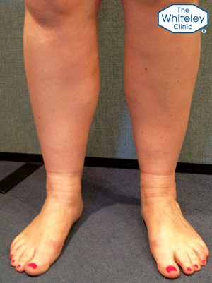 Swollen ankle with varicose veins and stock imprints - CEAP C3