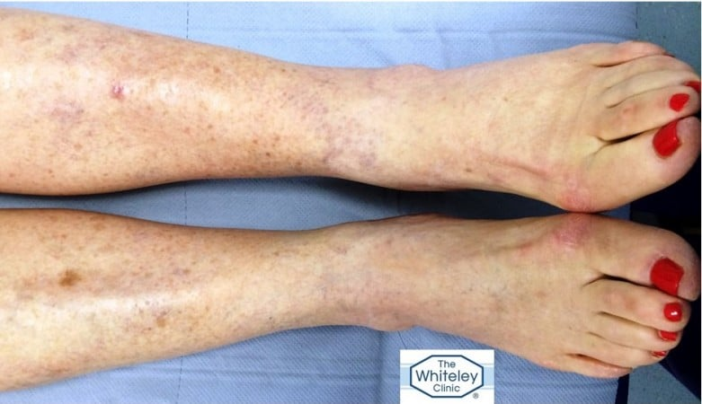 Swollen left ankle CEAP 3 due to hidden varicose veins missed for 10 Years