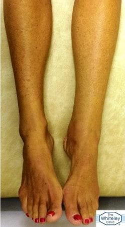Swollen left ankle due to hidden varicose veins venous reflux misdiagnosed as lymphoedema