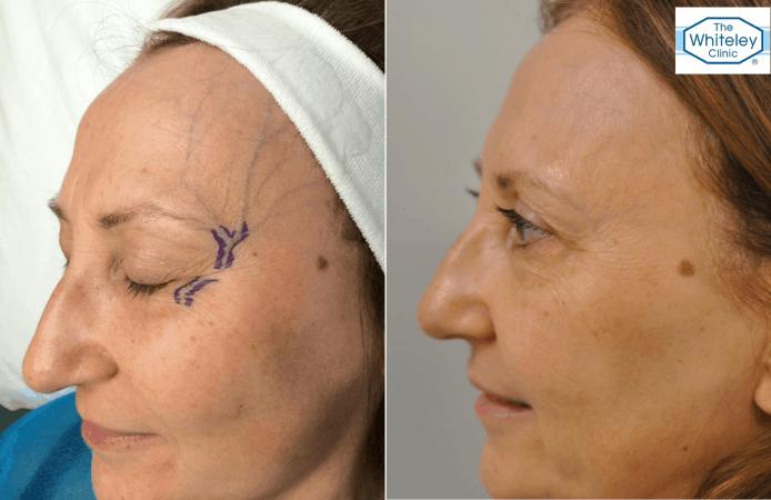 Facial temple veins, facial veins, testimonial, veins, vein health, cosmetic