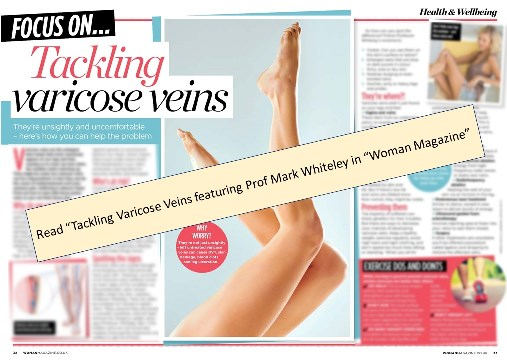 Tackling varicose veins – article featuring Prof Mark Whiteley in Woman Magazine 2019