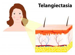 Diagram of Telangiectasia
