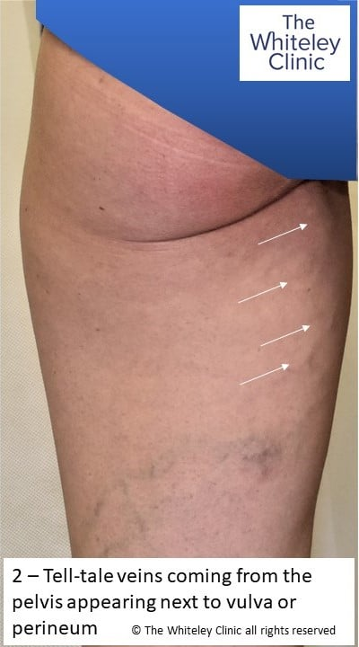 Tell-tale varicose vein arising from pelvis and emerging by vulva or perineum on inner thigh PCS