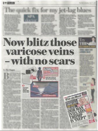 The Mail on Sunday – Now blitz those varicose veins at The Whiteley Clinic
