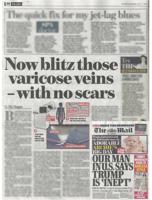 Blitz those varicose veins – Mail on Sunday article