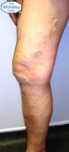 Thigh and calf varicose veins CEAP-C2