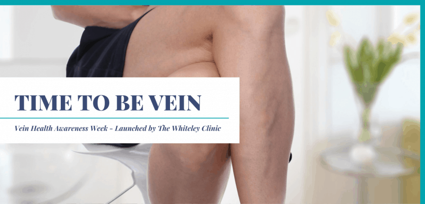 Time to be vein – Website Banner for Vein Health Awareness – Launched by The Whiteley Clinic