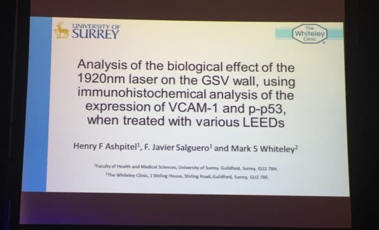 Title slide of top UK prize winning varicose veins research invited to The American Venous Forum Feb 2016
